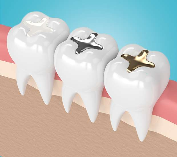 Vienna Composite Fillings
