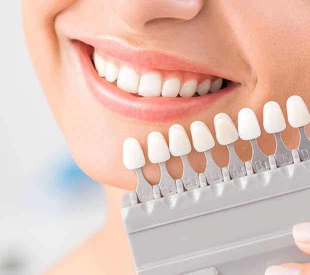 Vienna Dental Veneers and Dental Laminates